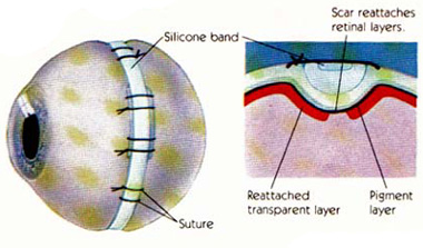 Scleral Buckling